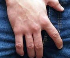 touching penis